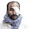 Mr Jober Ali, 45, manda naogaon, farmer, eye operation two days ago